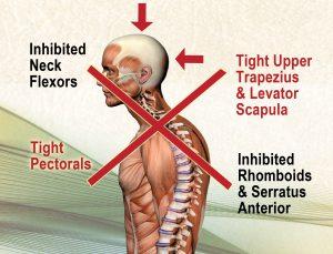Figure 1. Upper Cross Syndrome
