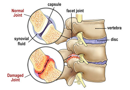 Image 1. Z-joint Pathology: Mechanical wear and tear of the zygapophyseal (Z-joints)
