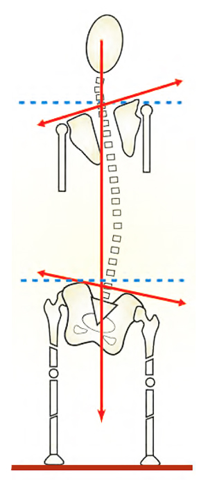 Figure 15: Scoliosis and the short leg syndrome. Long C-shaped scoliotic patterns from short leg syndromes arise from psoas imbalance, sciatic irritability healed leg fracture, hyperpronation, unloved hip prothesis etc.