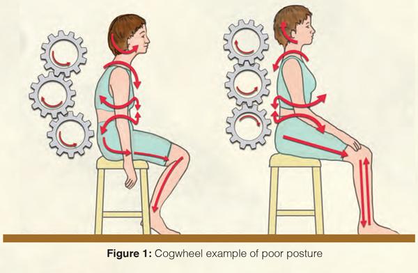 Figure 1: Cogwheel example of poor posture