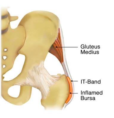 Image of Inflamed bursitis