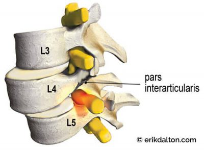 Image 3: Spondylolisthesis - a fracture of the pars interarticularis causes L4 to slip forward on L5, compressing one or both sciatic nerve roots as they leave the spine.